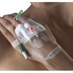 Smith and Nephew IV 3000 1-Hand Delivery Dressing